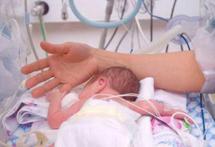 Недоношенные дети на 31 неделе фото